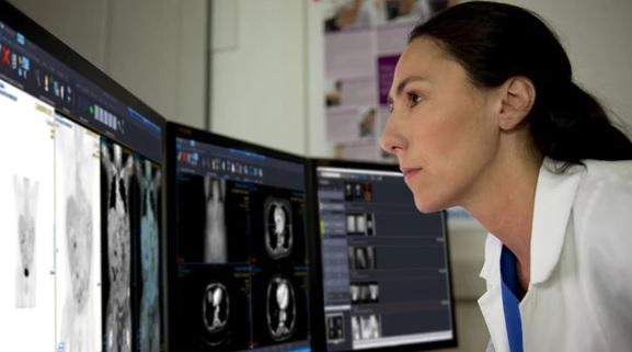 Falhas críticas relatadas nos sistemas de imagens médicas Philips Vue PACS